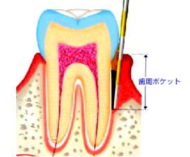 歯周ポ.jpg